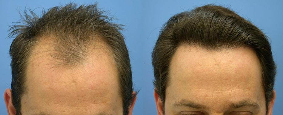 Для волос маски какие масло можно для роста