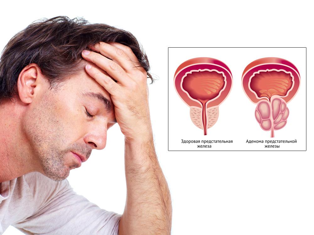 Невыраженная гиперплазия предстательной железы
