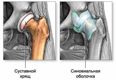 Коксартроз замена сустава реабилитация мениска коленного сустава симптомы